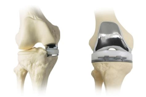 What is the difference between total knee replacement and