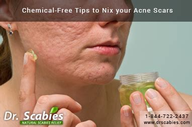 Chemical-Free Tips to Nix your Acne Scars | Best Scabies