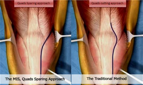 incision-2 - DOCJOINTS//DR SUJIT JOS//Total joint