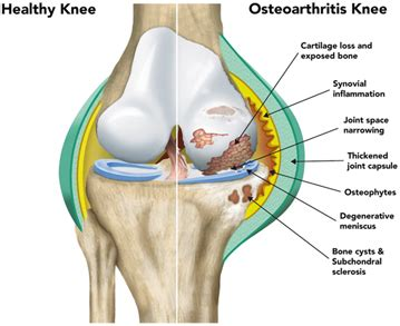 New osteoarthritis genes discovered, paving way for new
