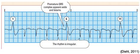 Introduction to Telemetry Monitoring for Arrhythmias