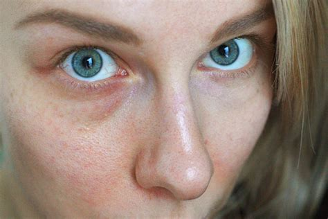 How to Get Rid of Broken Capillaries of the Face | Bellatory