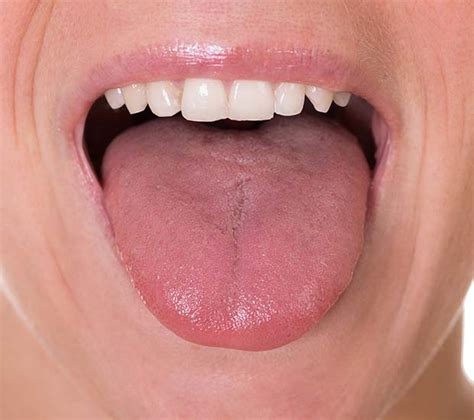 Myofunctional Therapy and Tongue Tie - Shannon H
